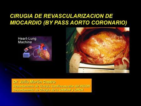 CIRUGIA DE REVASCULARIZACION DE MIOCARDIO (BY PASS AORTO CORONARIO) Dr. Julio Morón Castro Departamento de Cirugía Cardiovascular del INCOR Departamento.